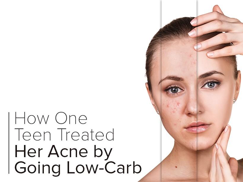 low carb acne