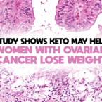 Study Shows Keto May Help Women With Ovarian Cancer Lose Weight
